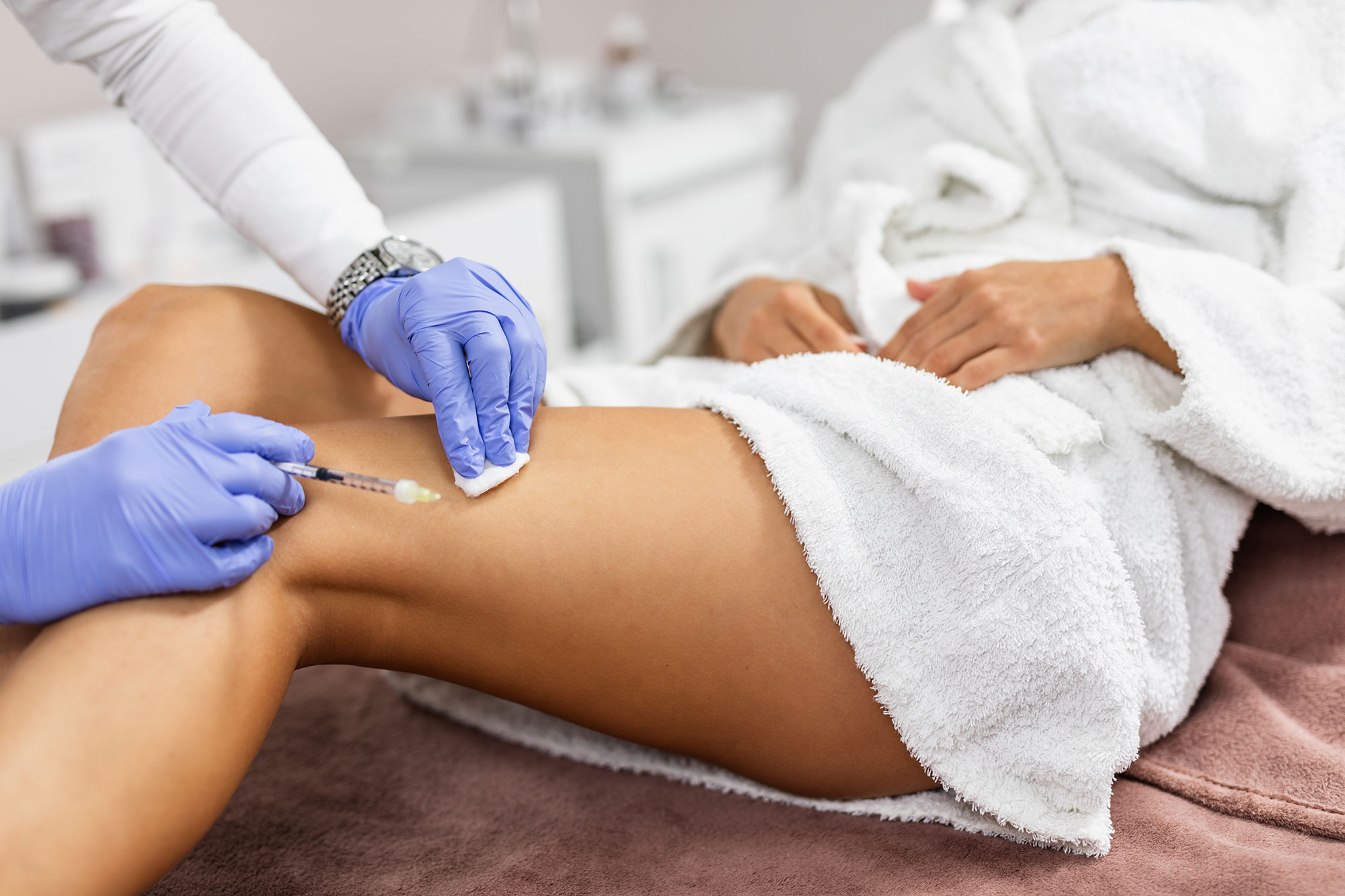 After Care Instructions for Sclerotherapy