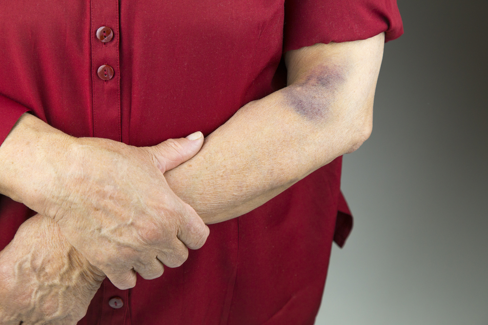 Can Bruises Cause A Blood Clot?