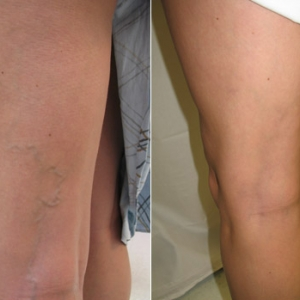 Before and after photos of light guided sclerotherapy treatment