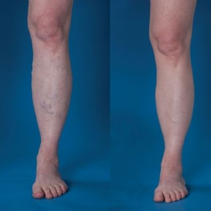 Varicose vein surgery before and after photos