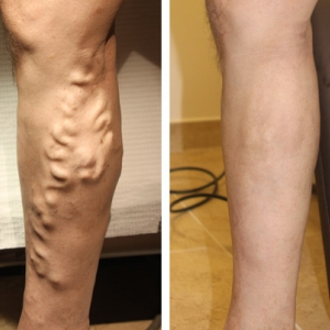 Pictures of large varicose veins before and after treatment