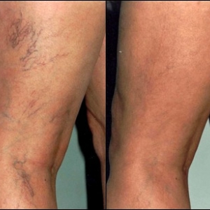 Before and after photos of spider veins treated