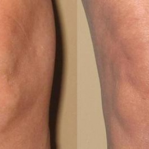 Before and after images of ambulatory phlebectomy treatment