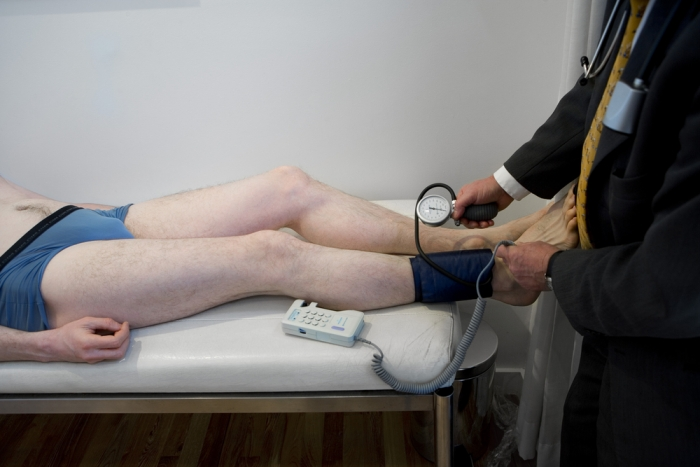 Should I Be Screened for Peripheral Artery Disease?