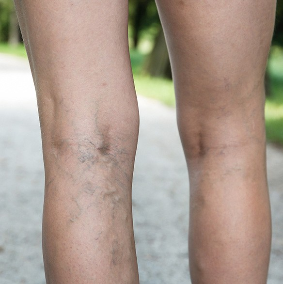A Guide To Varicose Veins And Spider Veins
